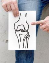 Oblasť kolena